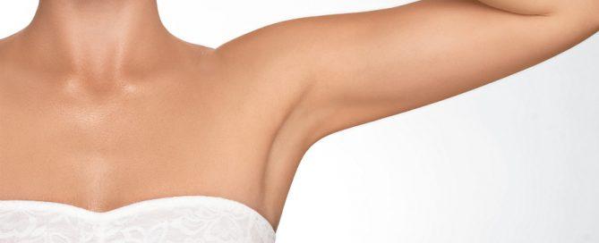 arm left